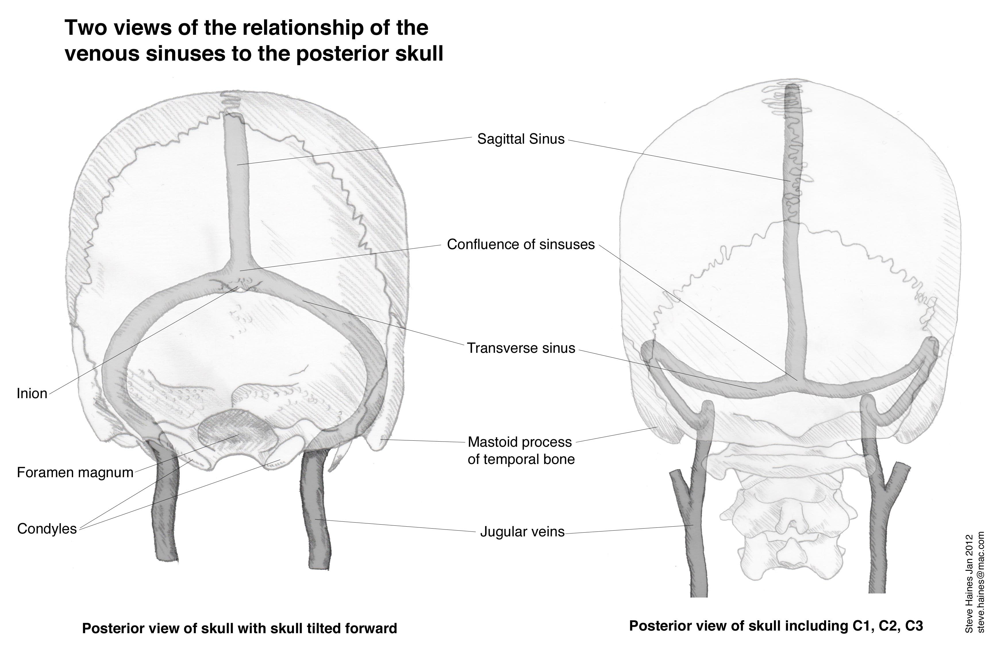 Working With The Venous Sinuses | cranial intelligence blog