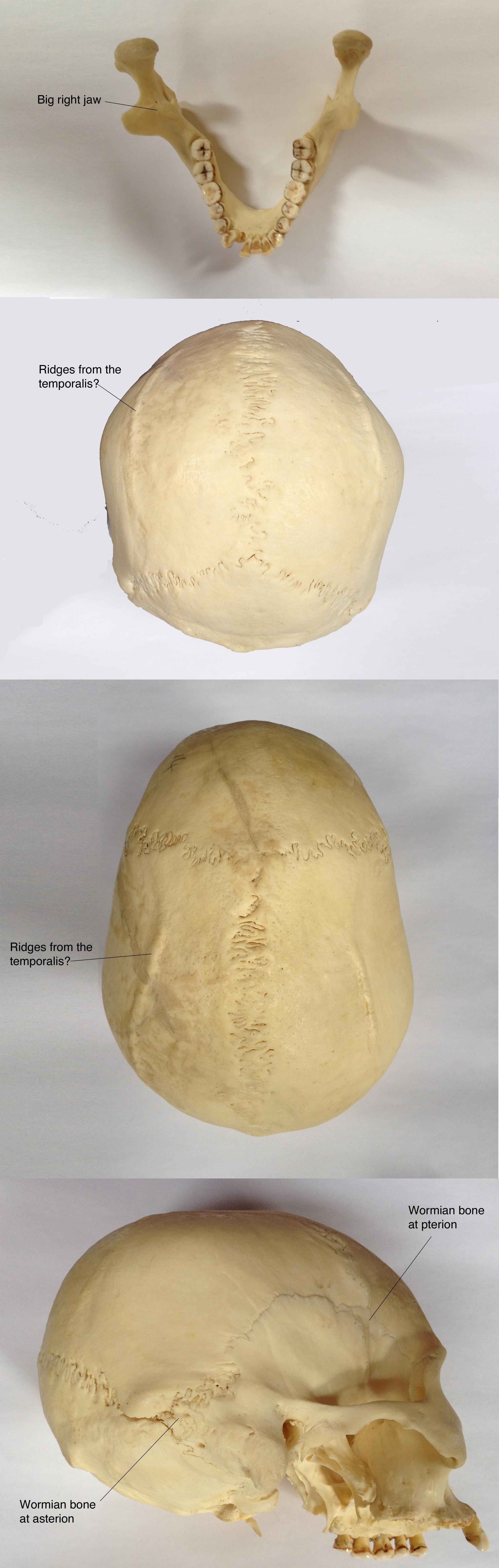 Uneven Lower Jaw Bone
