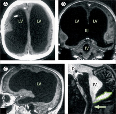 Massive ventricular enlargement, in a patient with normal social functioning(A) CT; (B, C) T1-weighted MRI, with gadolinium contrast; (D) T2-weighted MRI. LV=lateral ventricle. III=third ventricle. IV=fourth ventricle. Arrow=Magendie's foramen. The posterior fossa cyst is outlined in (D).
