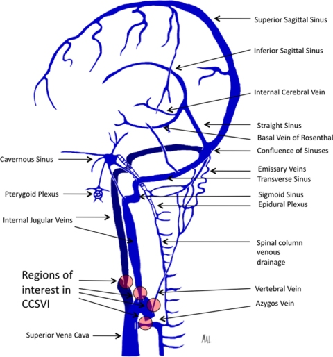 FIGURE 1 | Illustration depicting the predominant veins and sinuses involved in the craniocervical venous outflow. Venous narrowing is depicted at locations of interest in chronic cerebrospinal venous insufficiency. http://www.frontiersin.org/Endovascular_and_Interventional_Neurology/10.3389/fneur.2011.00044/full