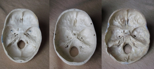Cranial base - three real skulls side by side