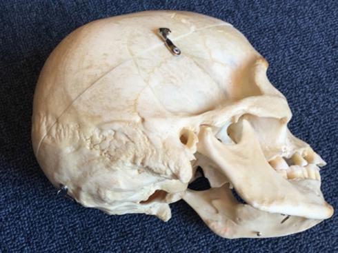 bi wiki skull dasein lateral inferior
